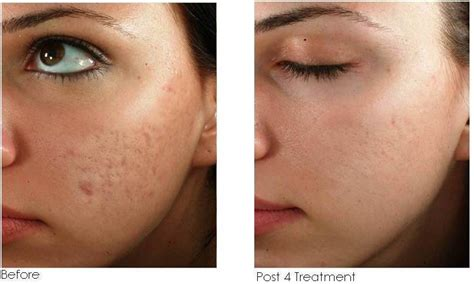 Micro Needling At Home by At Home Micro Needling Everything You Need To Dew