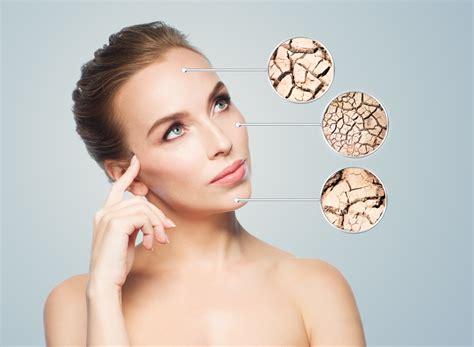 pelle disidratata alimentazione pelle secca o disidratata donna moderna