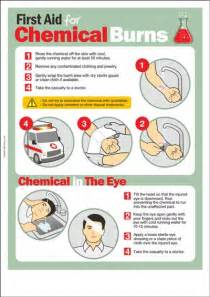 chemical safety poster first aid for chemical burns safety poster shop
