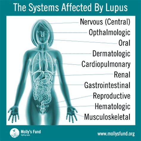 molly s fund systemic lupus erythematosus