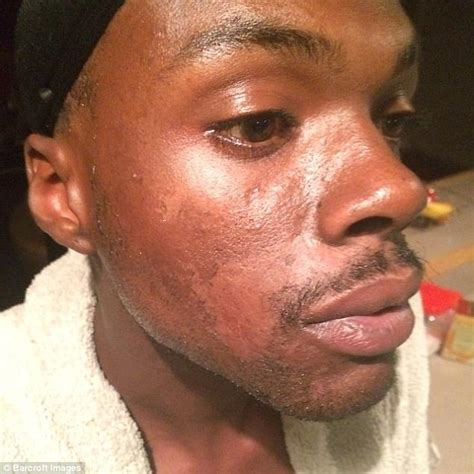 how skin looks straight after youtuber claims he looks better after years of skin