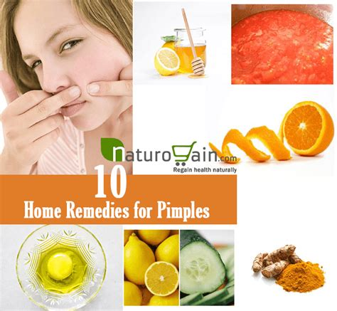 10 best home remedies for pimples to get clear skin