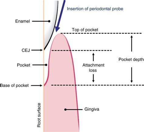 losing diagram periodontal attachment loss attachment loss periodontal