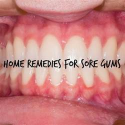 home remedies for sore gums my honeys place