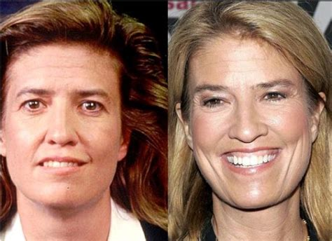 did kirsten powers have plastic surgery greta van susteren husband pictures to pin on pinterest