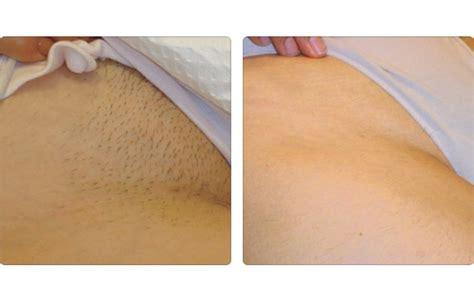 imagenes depilacion ingles brasileñas equipos para clinicas y spa 180 s dudas sobre la luz pulsada