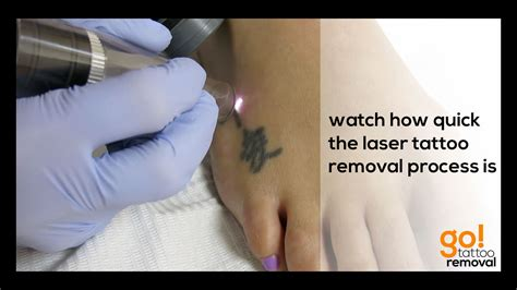 tattoo removal home remedies laser removal on a foot allentown pa
