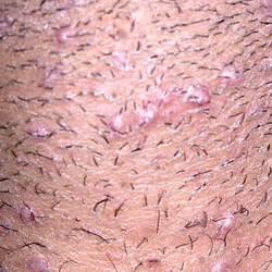 constant ingrown hairs on pubis about ingrown pubic hairs after shaving and how to prevent
