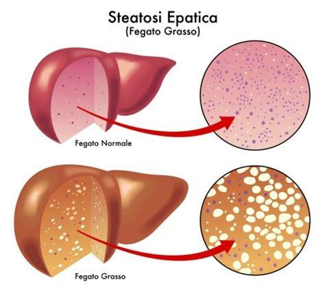 alimentazione fegato grasso steatosi epatica sintomi e cura alimentazione