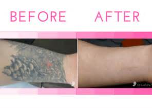 tattoo removal scottsdale laser removal at national laser institute