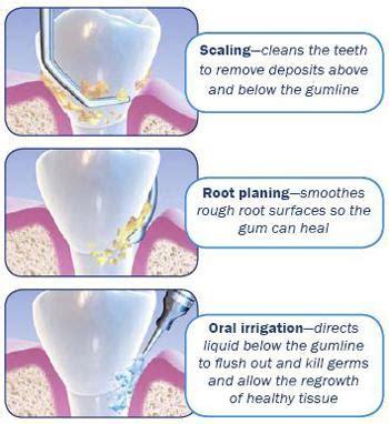 Pembersihan Karang Gigi Ke Dokter seramnya bahaya sakit gigi dapat menyebar ke bagian tubuh