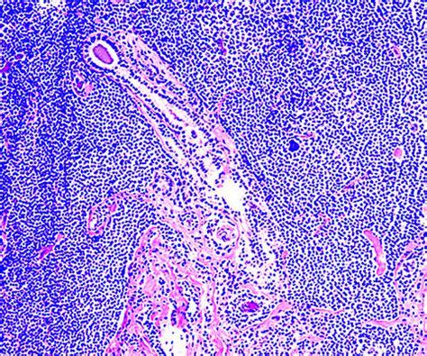 Malt Lymphoma Pathology Outlines by Pathology Outlines Lymphoma