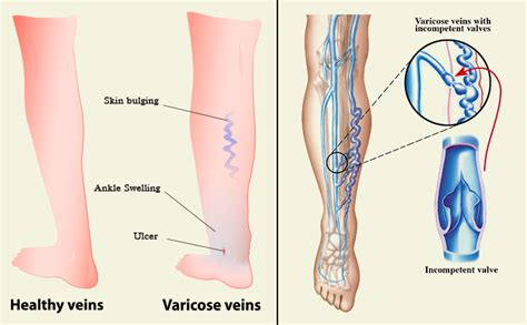 varicose veins treatment symptoms causes pictures varicose veins after pregnancy causes symptoms treatments