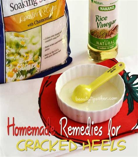 remedies for and cracked heels find