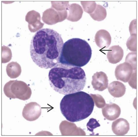 lacking pattern synonym hematogones in bone marrow basicmedical key
