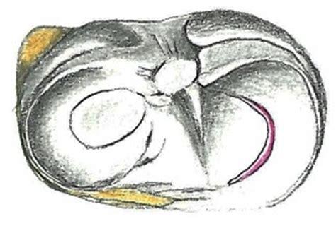 lesione corno posteriore menisco interno lesioni meniscali dott fabrizio rivera
