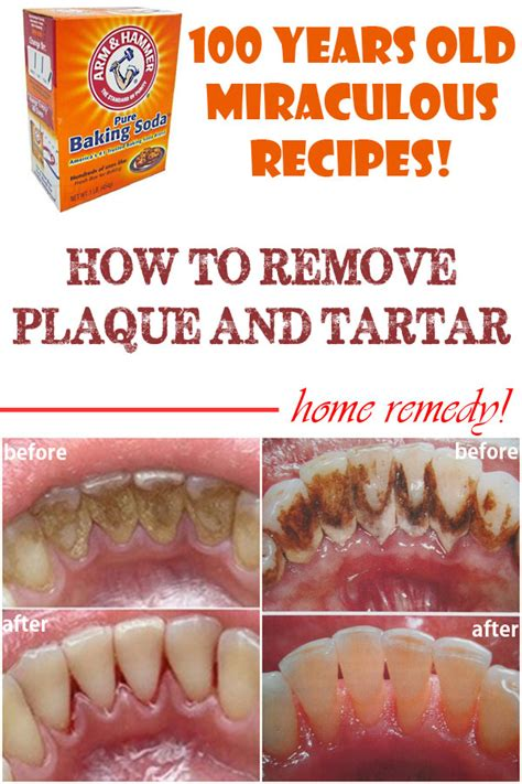 home remedies to remove plaque and tartar remedies
