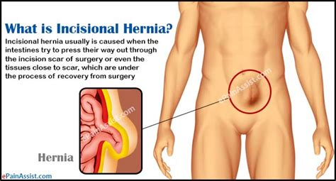 what is incisional hernia causes symptoms diagnosis