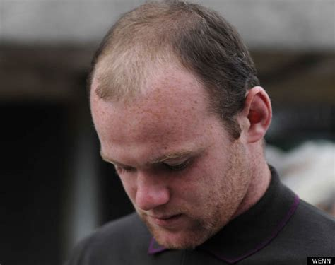 wayne rooney shows off the results of second hair wayne rooney new haircut hairstyle inspirations 2018