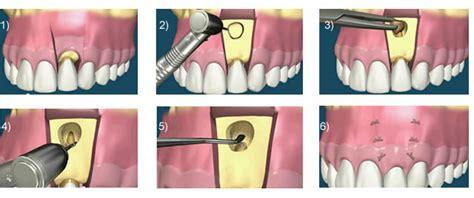 apparecchio denti interno costi chirurgia dentale orale estetica treviso veneto