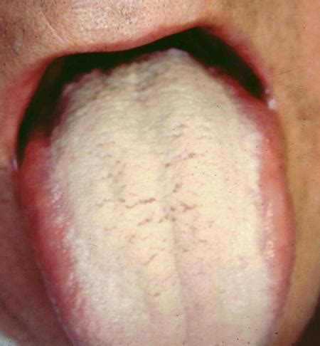 tongue color white coating on tongue causes symptoms treatment