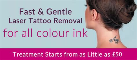 laser tattoo removal liverpool laser removal epilight new skin clinic