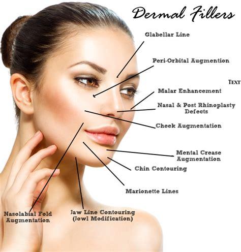 botox and dermal fillers juvederm radiesse restylane