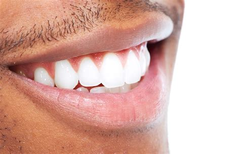 tooth whitening almondsbury yate dental