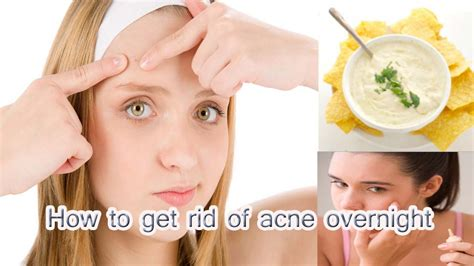 how to get rid of acne overnight how to get rid of acne