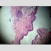 cutaneous-leishmaniasis-histology