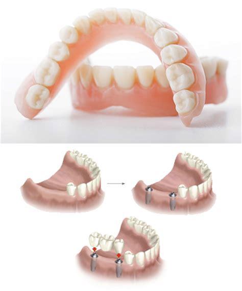 dentiera mobile costo protesi dentale centro polimed protesi fissa e mobile