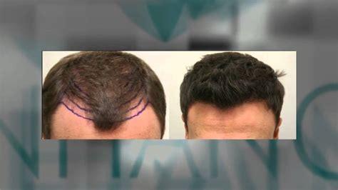 hair transplant india delhi mumbai youtube best hair transplant in delhi mumbai before after