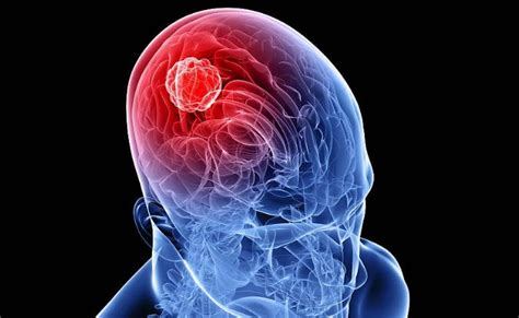 tumore alla testa giornata diagnosi tumori testa collo visite gratuite il