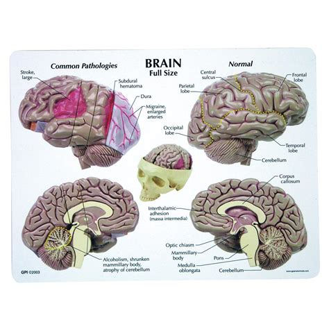 brain teasers living with epilepsy and sclerosis books brain model 1019542 2900 human brain models models