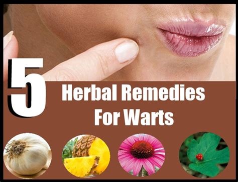 5 powerful herbal remedies for warts warts treatment