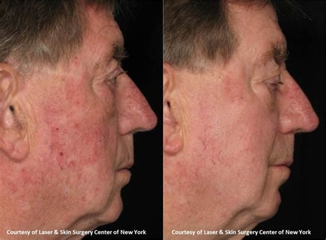 Fraxel Laser Skin Resurfacing New York