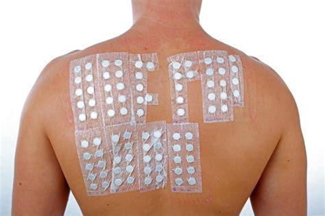 test allergia nichel allergietest karlsruhe praxis dres med meyer rogge und