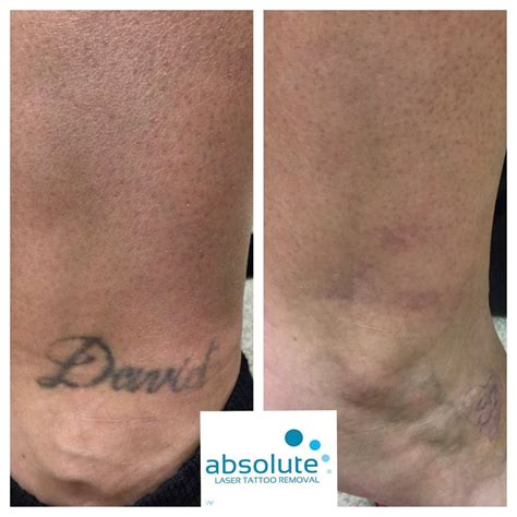 absolute laser tattoo removal 33 photos amp 39 reviews