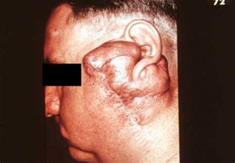 Detox With Paratid by Salivary Gland Tumors Causes Symptoms Treatment