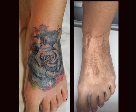 tattoos nancy skin art amsterdam
