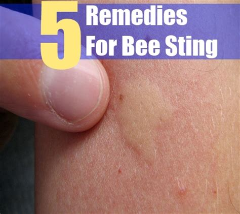 bee sting on a herbal remedies for bee sting best herbs for bee sting treatments search herbal