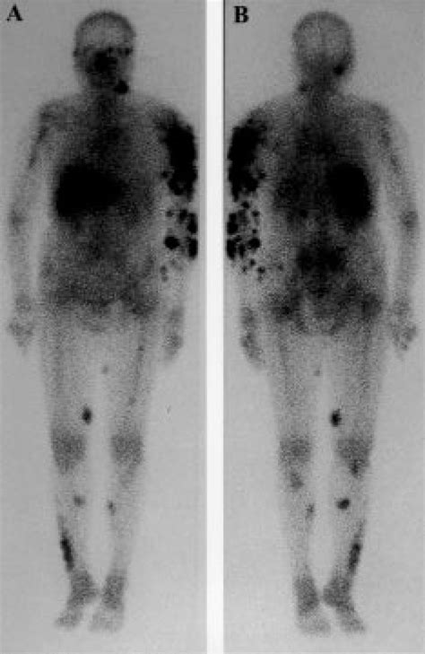(A) Whole-body gallium-67 scan demonstrates multiple