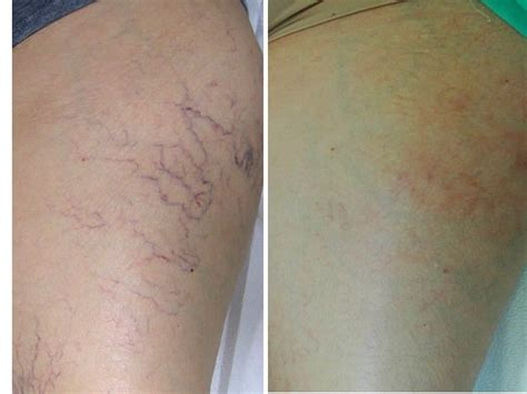 spider veins on the legs treatments spider vein treatment the vein specialists of northwest