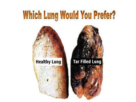That Completely Detox Your Lungs Of Tar by Lung Detoxification How To Clean Tar And Toxins With A