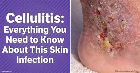 what is olaplex everything you need to know about the cellulitis everything you need to know about this skin