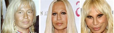 Donatella Versace Tells Clinton To Take by Donatella Versace Before Surgery