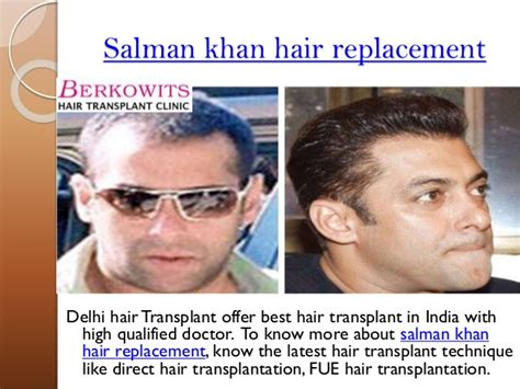Dr Batra Hair Loss Treatment Cost | want to know cost of hair transplantation in delhi india