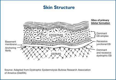 diagram of skin centering the focus epidermolysis bullosa center to cure