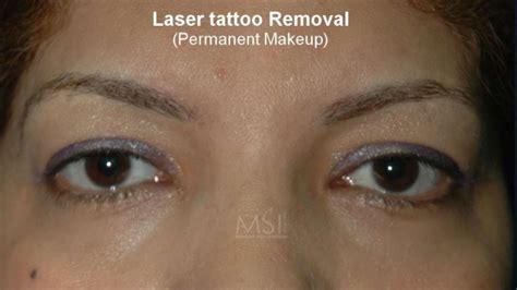 tattoo removal app laser removal the savior