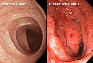ulcerative colitis surgery what to expect in pictures